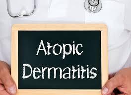 la dermatite atopica